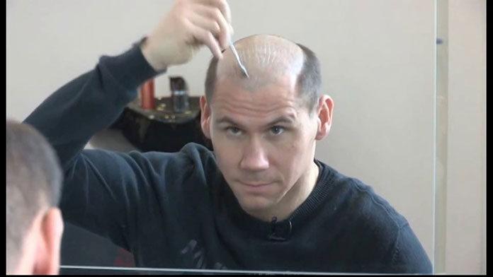 Przyklejanie Systemu Włosów