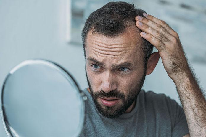 Remedium na problem nadmiernego wypadania włosów- mikropigmentacja skóry głowy